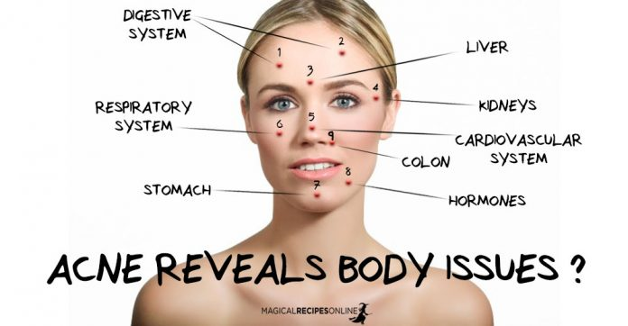 Acne Reveals Body Issues - Chinese Face Map